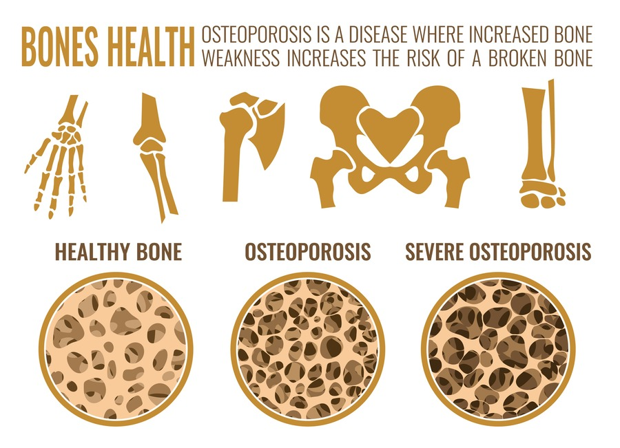 infografica su osteoporosi