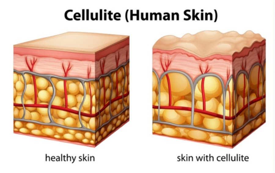 strati di pelle con e senza cellulite