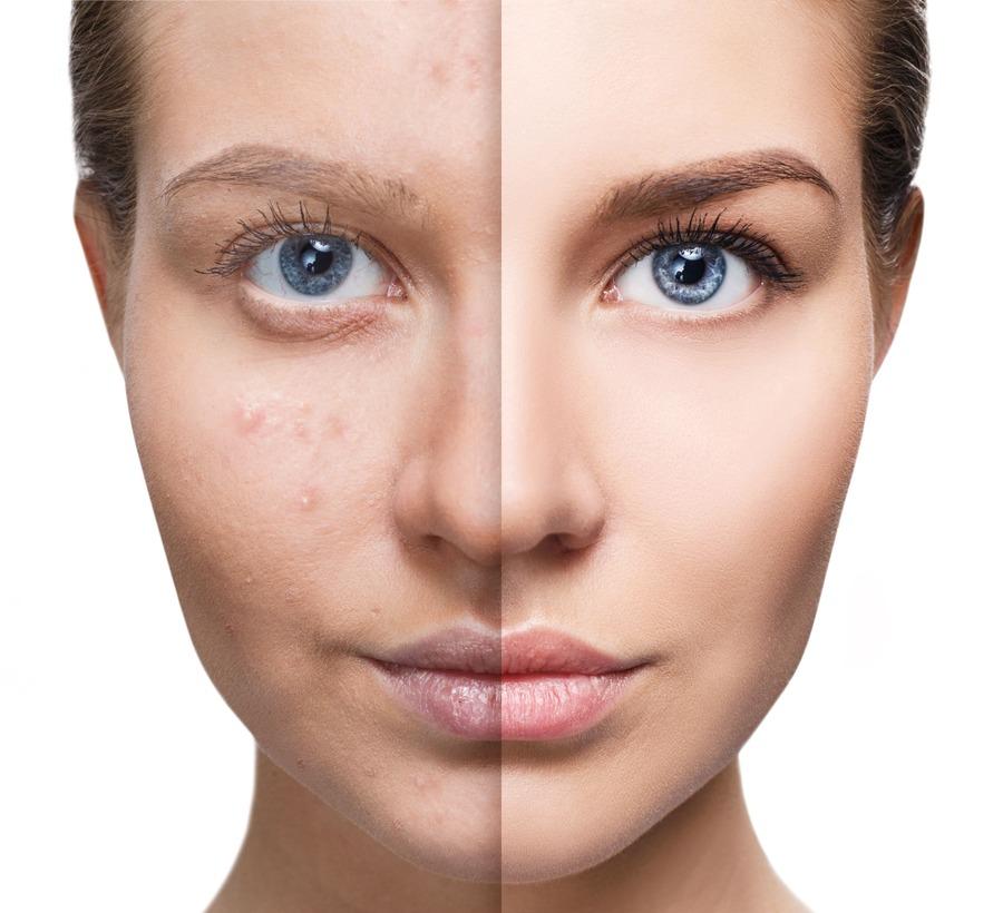 viso pelle perfetta a confronto con viso con acne